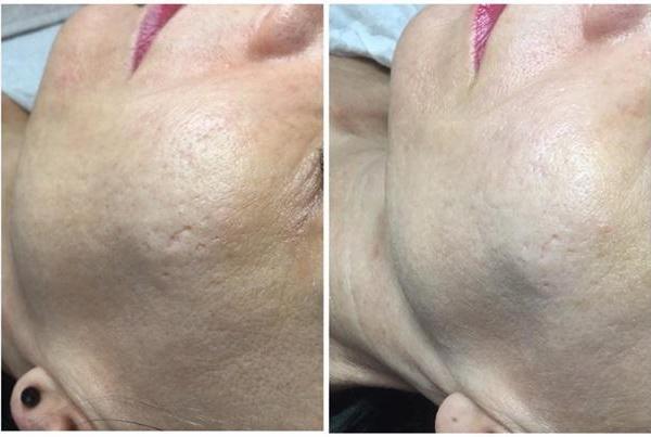 efekty zabiegów kosmetycznych 3