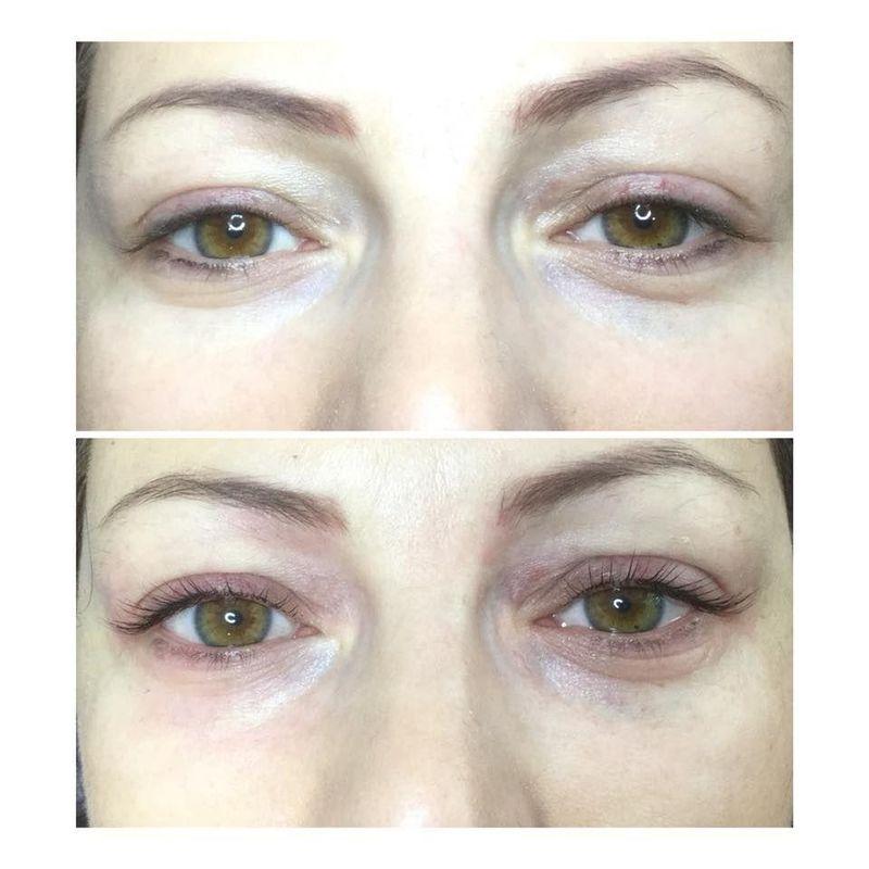 efekty zabiegów kosmetycznych 01