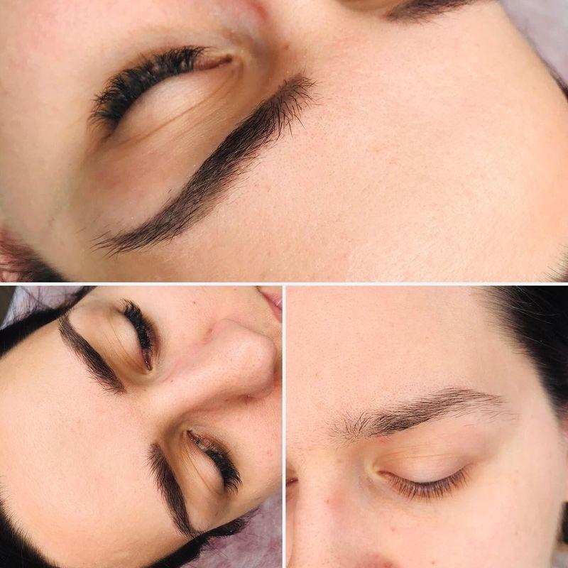 efekty zabiegów kosmetycznych 02