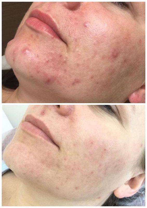 efekty zabiegów kosmetycznych 03