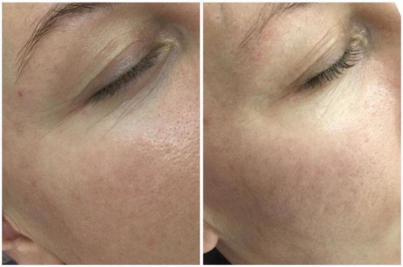 efekty zabiegów kosmetycznych 05