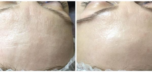 efekty zabiegów kosmetycznych 06