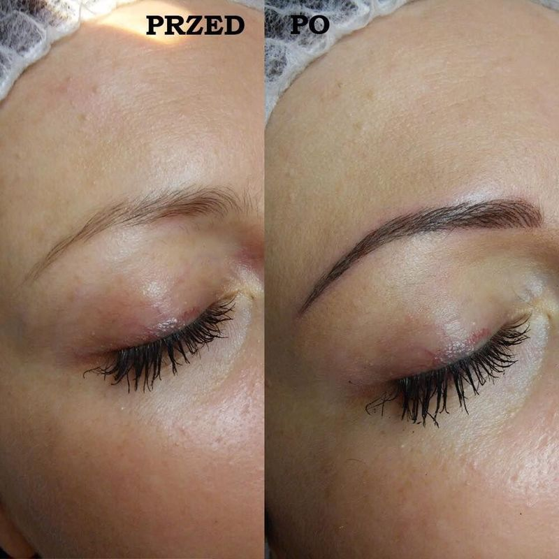 efekty zabiegów kosmetycznych 08