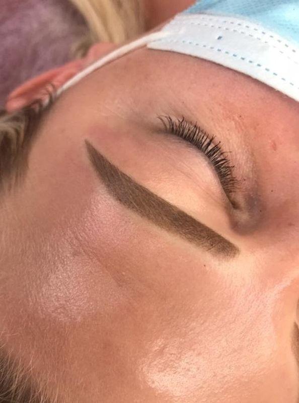 efekty zabiegów kosmetycznych 102