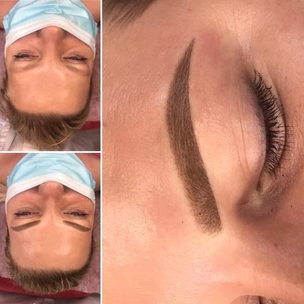 efekty zabiegów kosmetycznych 103