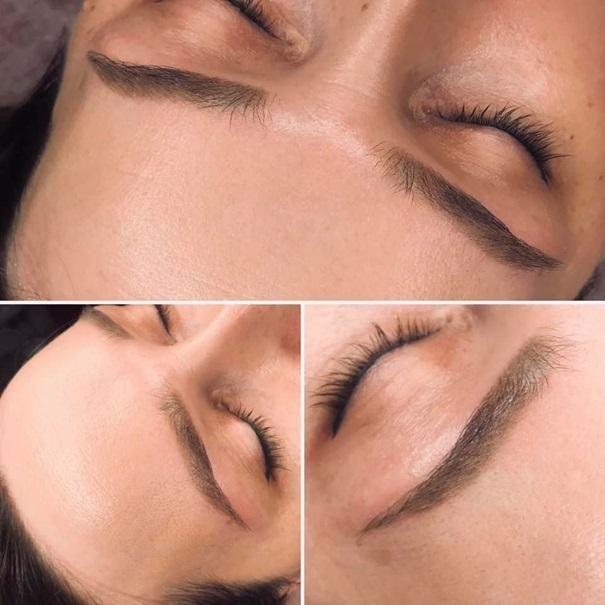 efekty zabiegów kosmetycznych 104