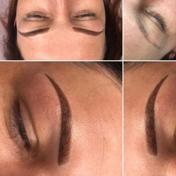 effekty-zabiegow-kosmetycznych-106