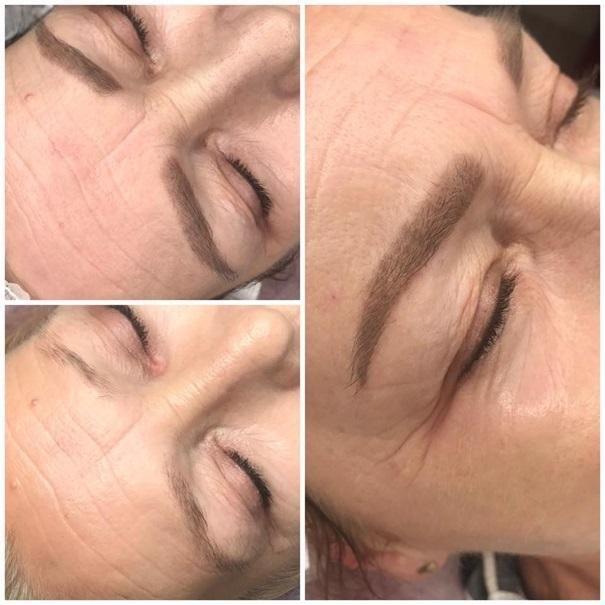 efekty zabiegów kosmetycznych 107