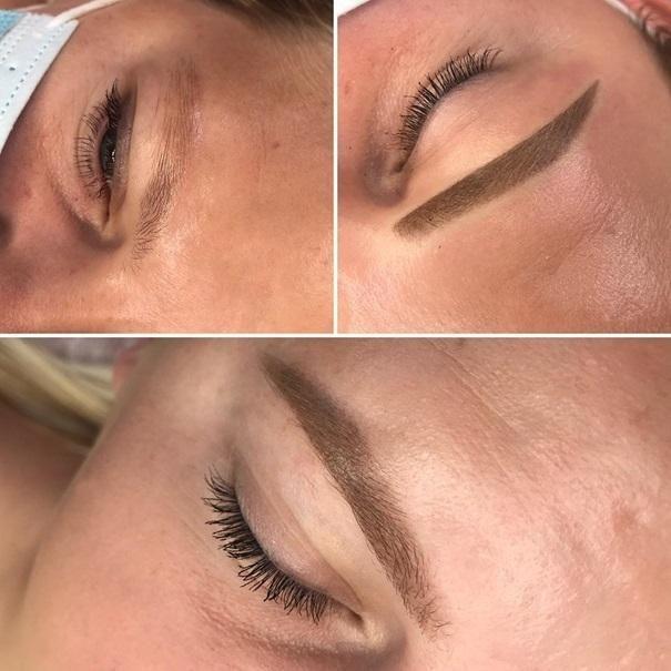 efekty zabiegów kosmetycznych 110