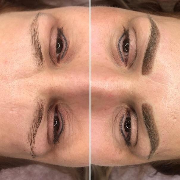 effekty-zabiegow-kosmetycznych-113