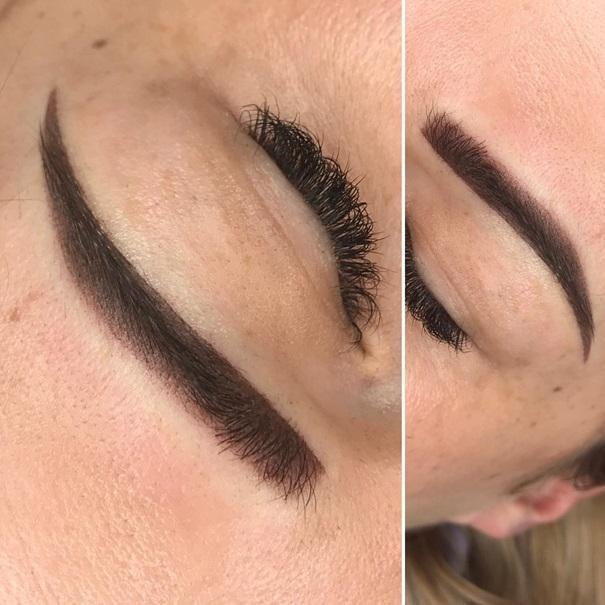 efekty zabiegów kosmetycznych 114
