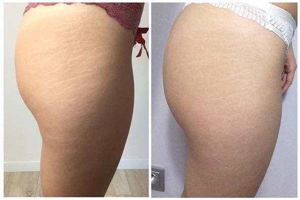 efekty zabiegów kosmetycznych 118