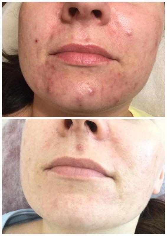 efekty zabiegów kosmetycznych 122
