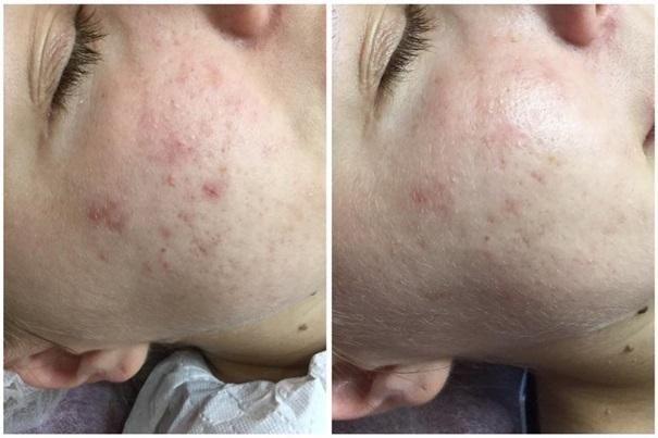 efekty zabiegów kosmetycznych 125