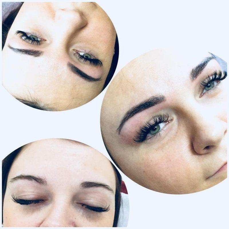 efekty zabiegów kosmetycznych 18