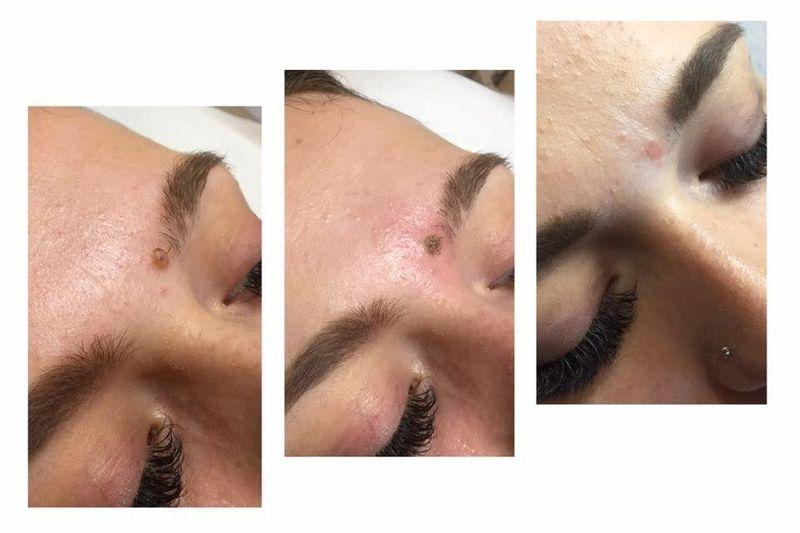efekty zabiegów kosmetycznych 22
