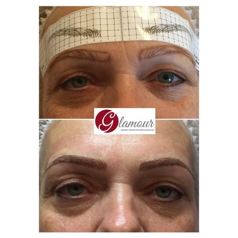 effekty-zabiegow-kosmetycznych-24