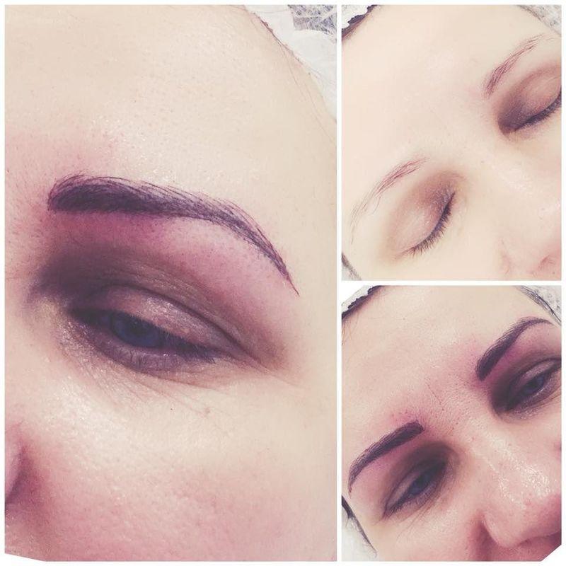 efekty zabiegów kosmetycznych 27