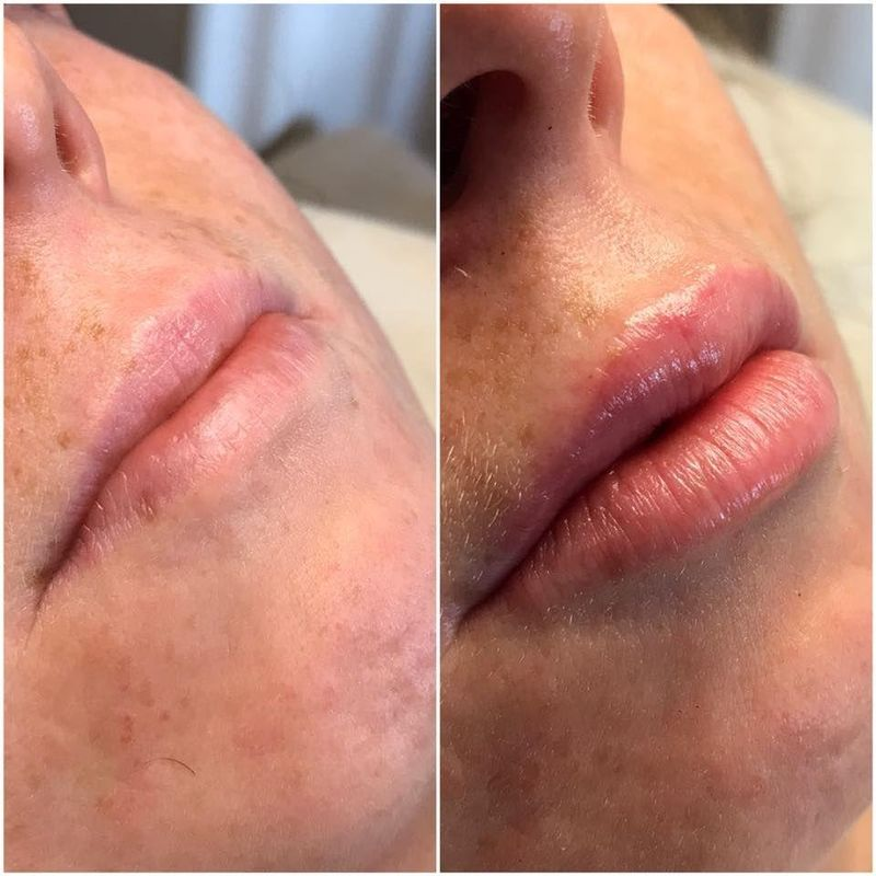 efekty zabiegów kosmetycznych 29