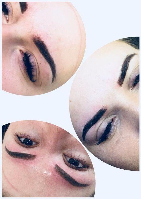efekty zabiegów kosmetycznych 30