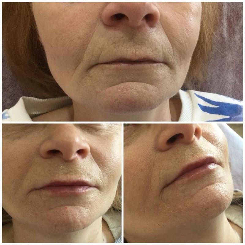 efekty zabiegów kosmetycznych 36