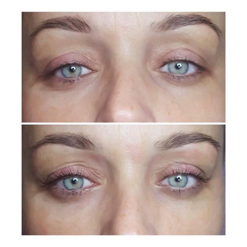 effekty-zabiegow-kosmetycznych-54