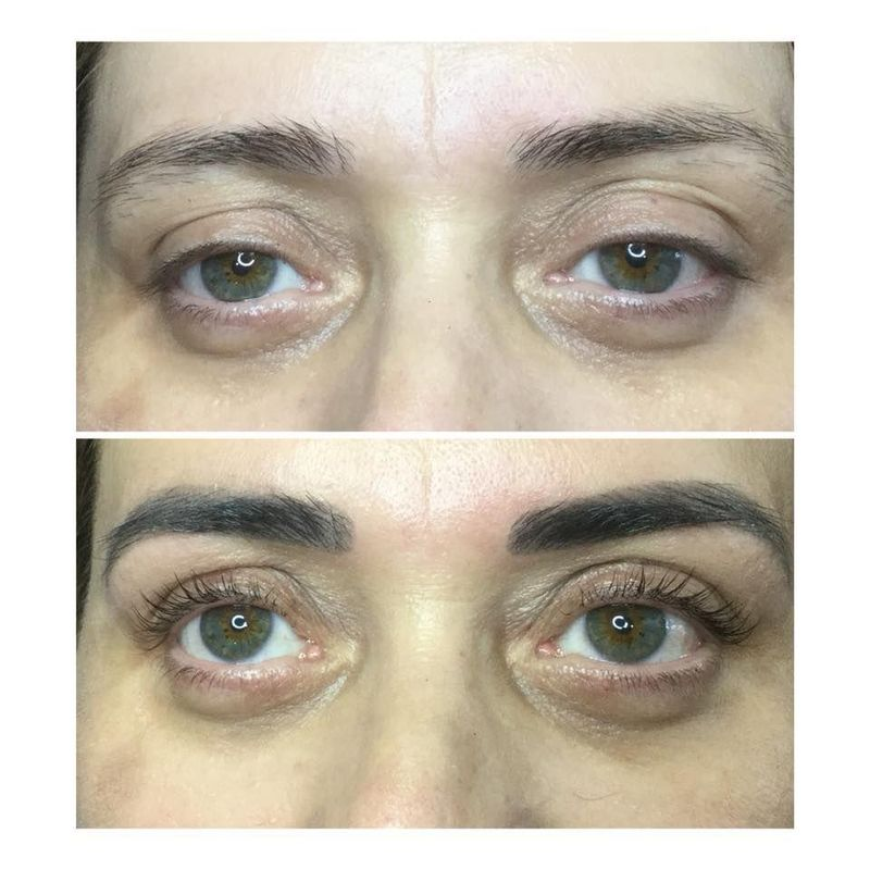effekty-zabiegow-kosmetycznych-56