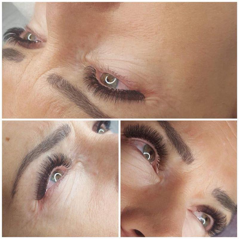 efekty zabiegów kosmetycznych 60