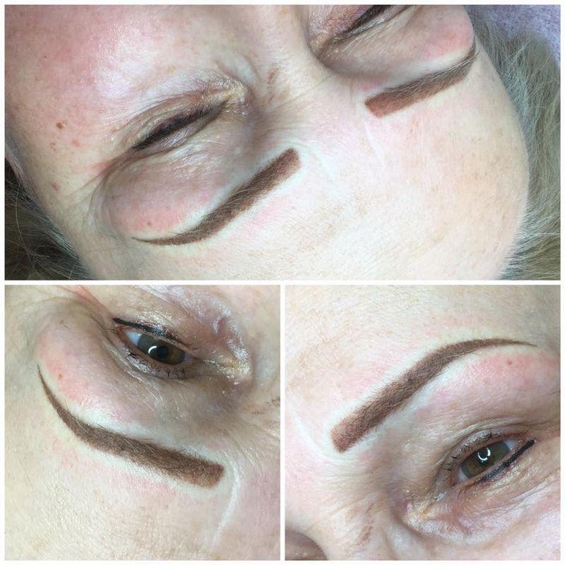 efekty zabiegów kosmetycznych 66