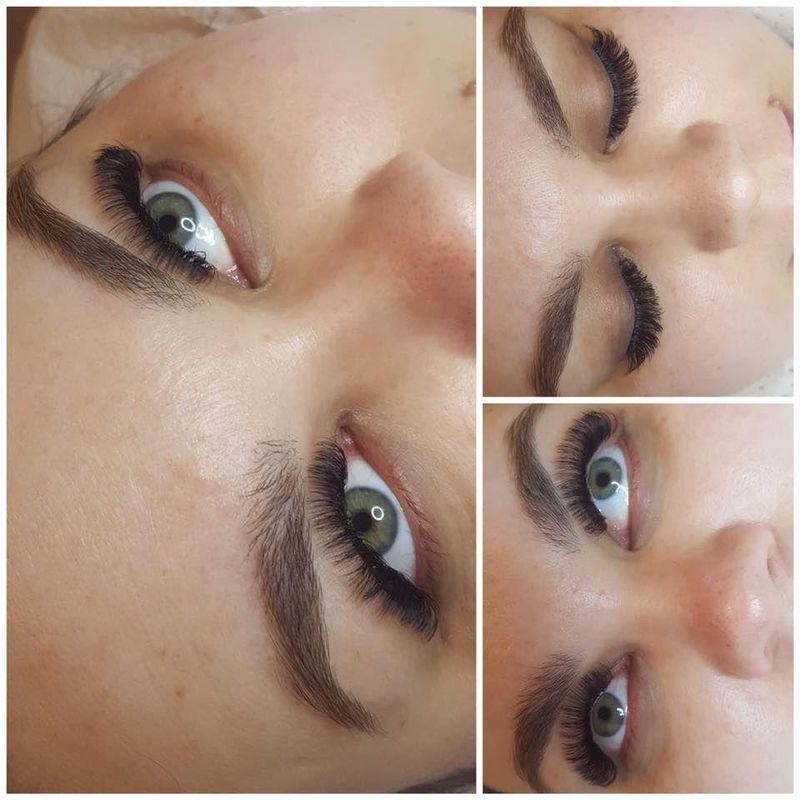 efekty zabiegów kosmetycznych 68