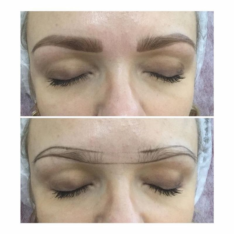 efekty zabiegów kosmetycznych 70
