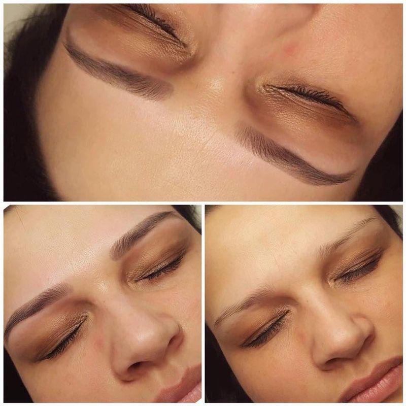 efekty zabiegów kosmetycznych 73