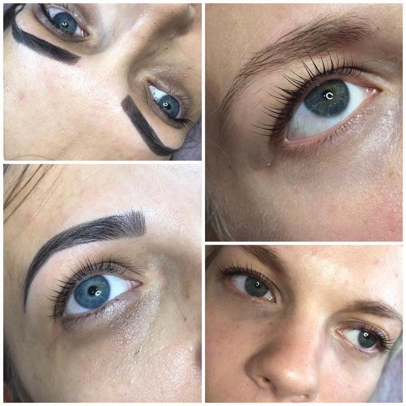 efekty zabiegów kosmetycznych 78