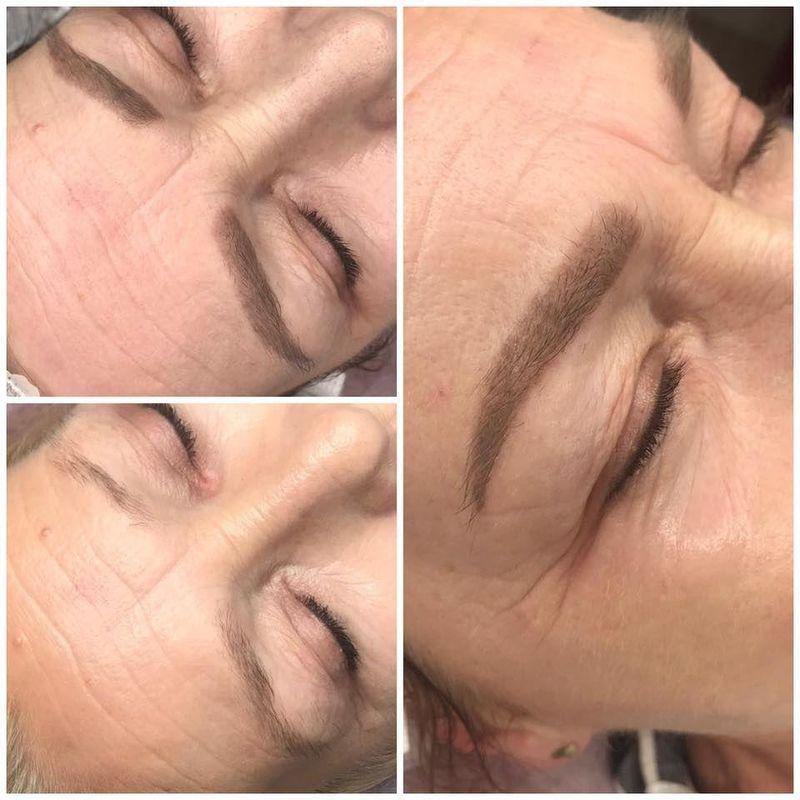 efekty zabiegów kosmetycznych 80