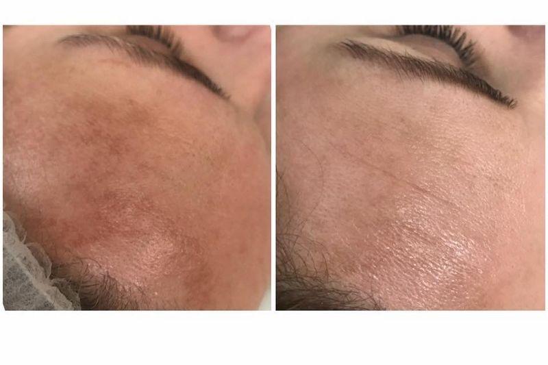 efekty zabiegów kosmetycznych 85