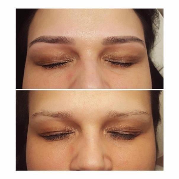 efekty zabiegów kosmetycznych 86