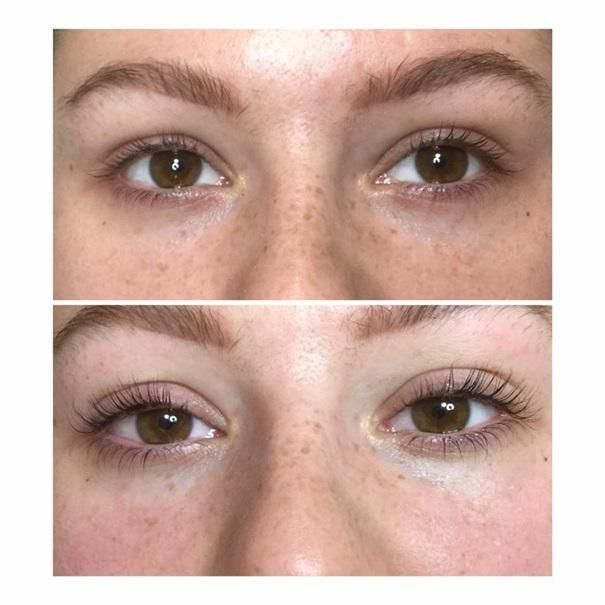 efekty zabiegów kosmetycznych 89