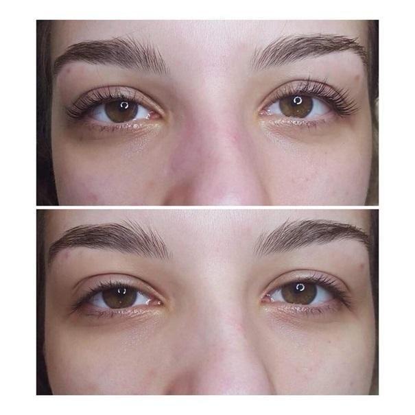 efekty zabiegów kosmetycznych 90