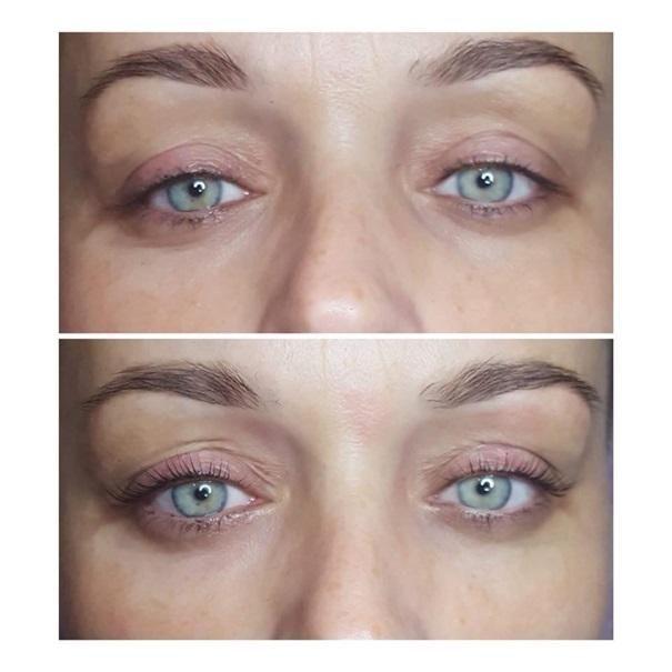 efekty zabiegów kosmetycznych 92