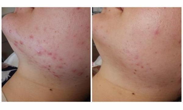 efekty zabiegów kosmetycznych 04