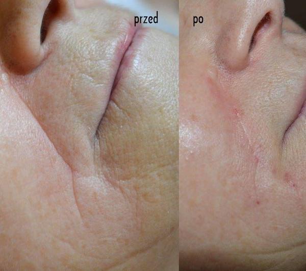 efekty zabiegów kosmetycznych 10