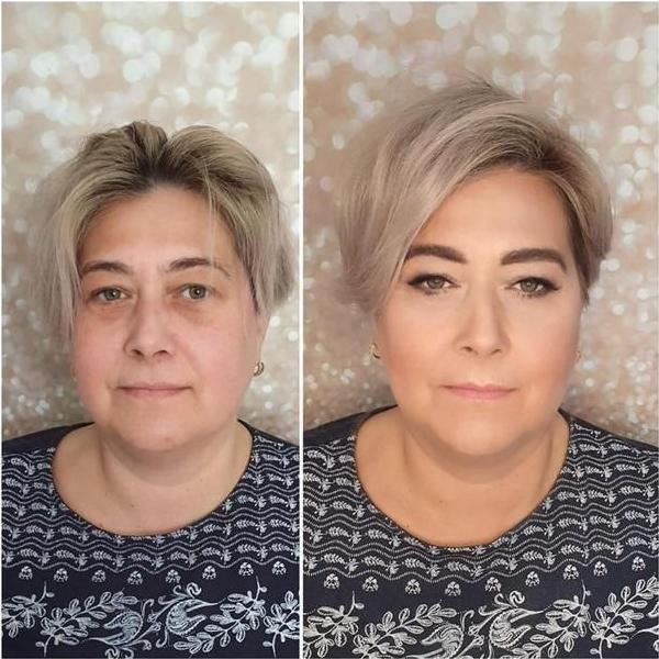 efekty zabiegów kosmetycznych 100