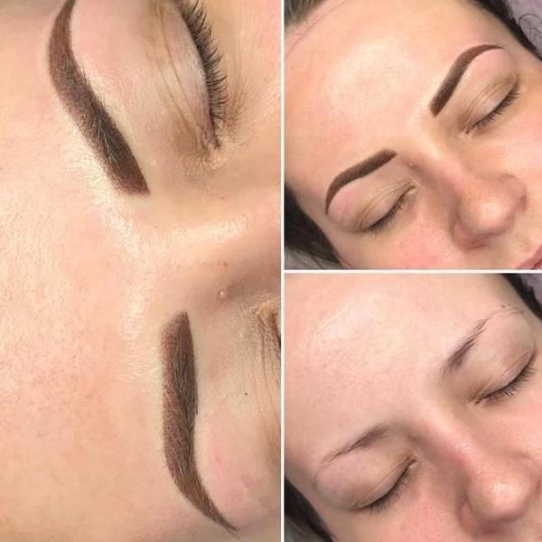 efekty zabiegów kosmetycznych 105