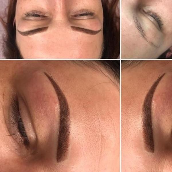 efekty zabiegów kosmetycznych 106
