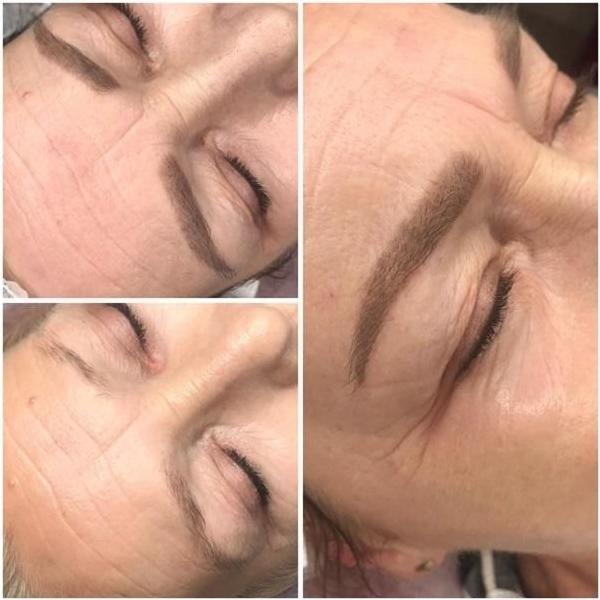 effekty-zabiegow-kosmetycznych-107