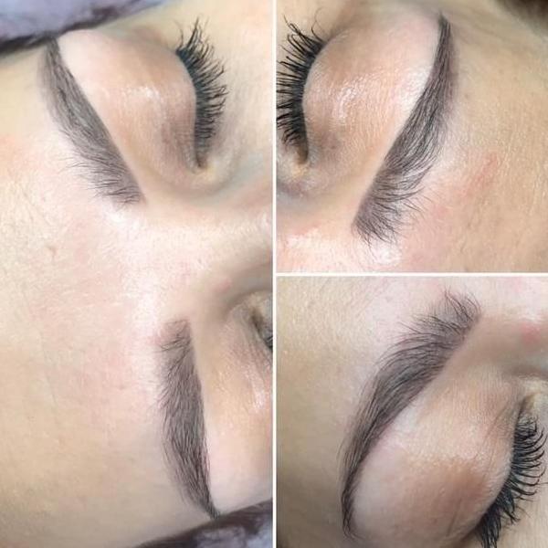 efekty zabiegów kosmetycznych 108
