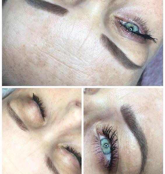 efekty zabiegów kosmetycznych 109