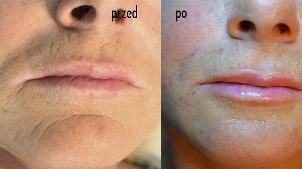 efekty zabiegów kosmetycznych 11