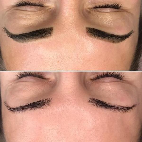 efekty zabiegów kosmetycznych 111