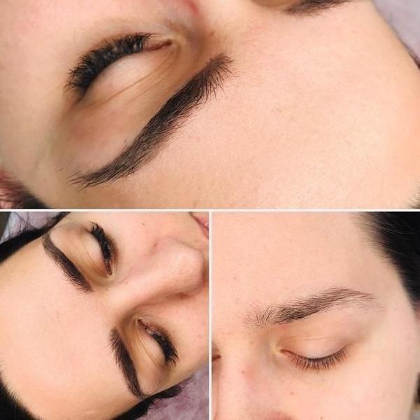 efekty zabiegów kosmetycznych 112
